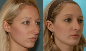 Success Factors of Rhinoplasty