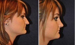 Nose Types and Shapes for Rhinoplasty