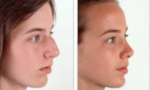 Natural Look of Rhinoplasty