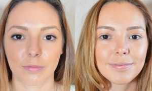 Patients Concerns of Rhinoplasty