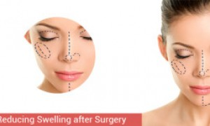 Healing of Nose After Rhinoplasty