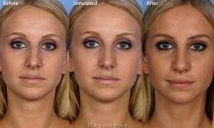Facts of Rhinoplasty