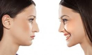 Why Rhinoplasty is İmportant