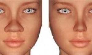 Types of Rhinoplasty
