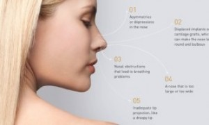 Revision Rhinoplasty Reasons