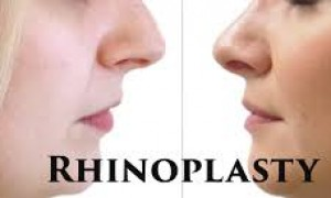 Nose Protection After Rhinoplasty Surgery