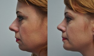 Rhinoplasty with Chin Aesthetic