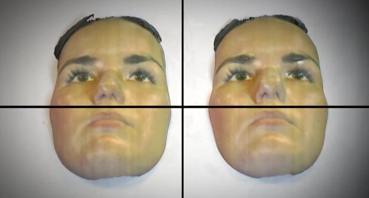 3D rhinoplasty surgeon