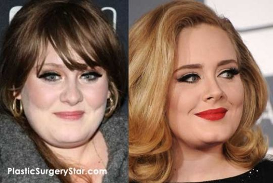 Adele Before And After Nose Job