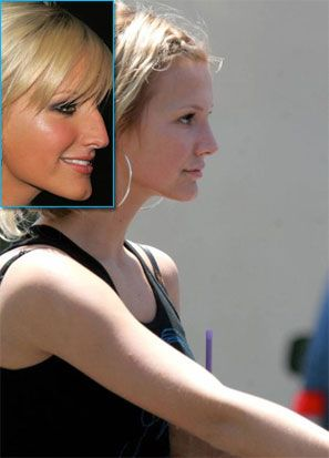 Ashlee Simpson Nose Job, A Plastic Surgeon's Perspective
