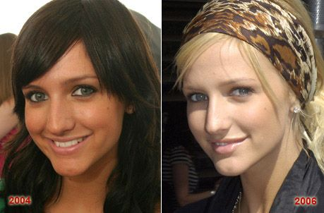 Ashlee Simpson Nose Job Surgery before and after photo