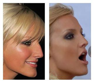 Ashlee Simpson nose job surgeon