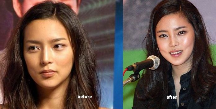 Asian Nose Job surgery before and after