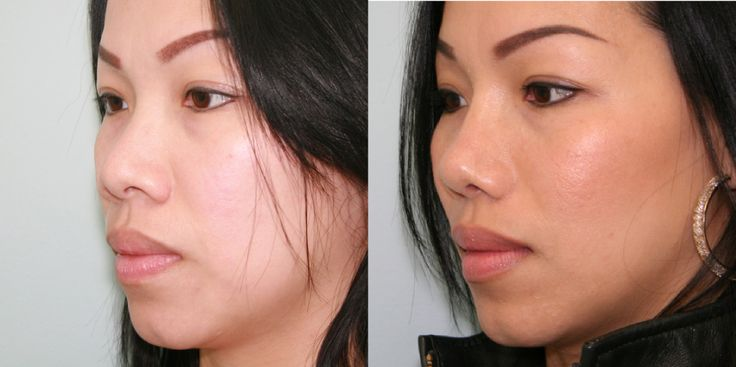Asian nose job (rhinoplasty)