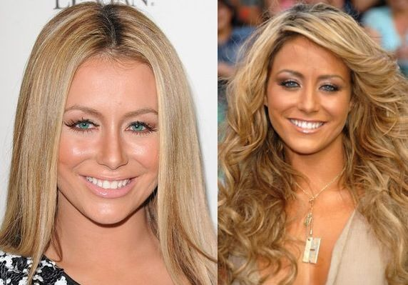 Aubrey Oday Before And After Nose Job