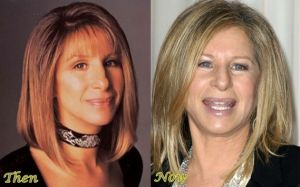 Barbra Streisand Nose job Before And After Photos