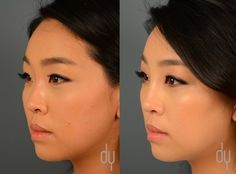 Before + After Non-Surgical Asian Nose Job