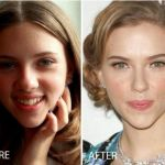 Before After Scarlett Johansson Nose Job