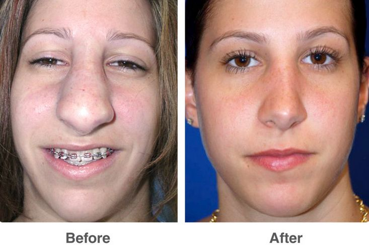 Before and after nose job result a big change
