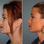 Best nose job surgery