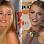 Blake Lively nose job before and after
