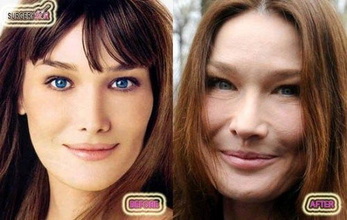 Carla Bruni, Before and After