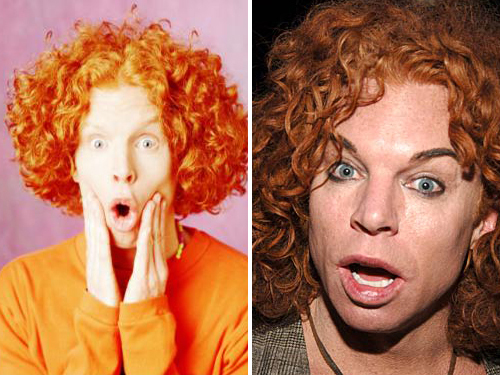 Carrot Top bad nose job