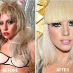Celeb Surgery Lady Gaga Nose Job Before and After