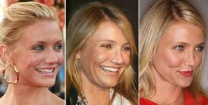 Celebrity Cameron Diaz Nose Job