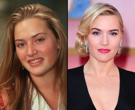 Celebrity Kate Winslet Nose Job Before & After
