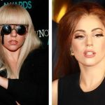 Celebrity Lady GaGa Nose Job Pictures