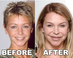 Celebrity Leslie Ash Plastic Surgery Before After