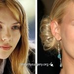 Celebrity Scarlett Johansson before and after plastic surgery