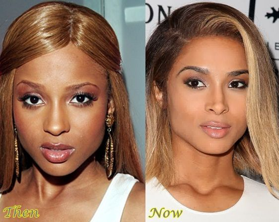 Ciara Rhinoplasty Before And After