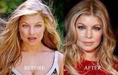 Fergie Nose Job Surgery