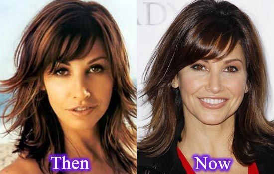Gina Gershon Nose Job Plastic Surgery
