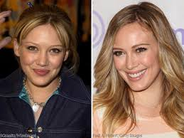Hillary Duff Nose Job Surgery