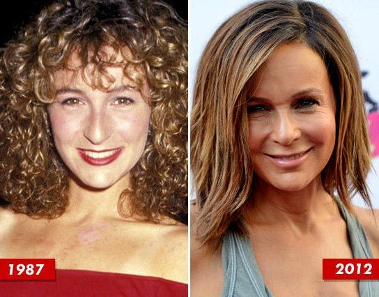 Jennifer Grey Nose Job After-Before