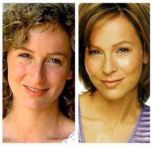 Jennifer Grey's nose job after and before