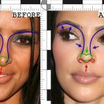 Kim Kardashian's Nose Job