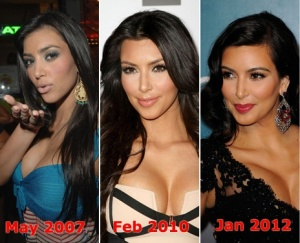 Kim Kardashian's Nose Job Progress