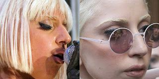 Lady Gaga Plastic Surgery Before and After Nose Job and Facelift