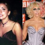 Lady Gaga Plastic Surgery Before and After, Nose and Breast Implant