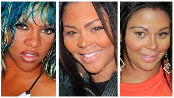 Lil Kim's dramatic bad nose job surgery