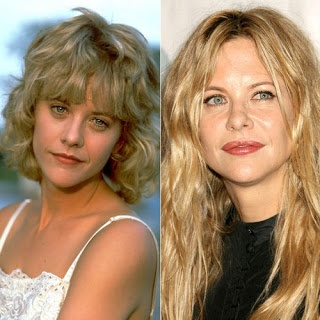 Meg Ryan, before and after