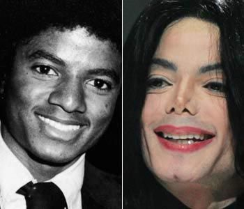 Michael Jackson Nose Job Surgery Disaster