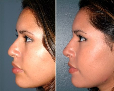 Non Surgical Nose Job Before After