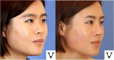 Non-surgical nose job for dorsum agumentation projection of the nose