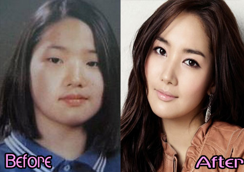 Park Min Young Asian nose job