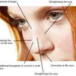 Rhinoplasty prices depending on the surgery type